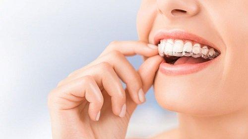 Niềng răng thưa có đau không? Chia sẻ thực tế 2