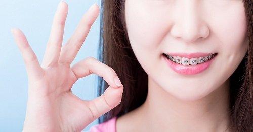 Niềng răng thưa có đau không? Chia sẻ thực tế 4