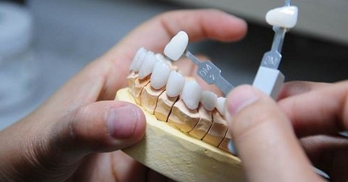 Bọc răng hàm bị sâu giá bao nhiêu? Mức chi phí phù hợp 2