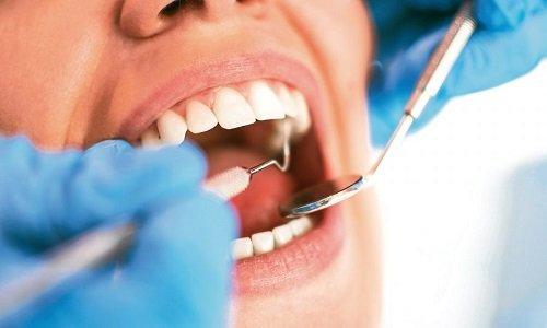 Bọc răng hàm bị sâu giá bao nhiêu? Mức chi phí phù hợp 3