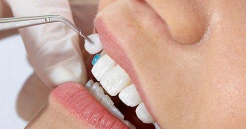 Bọc răng sứ bao lâu thì ăn được bình thường? 1