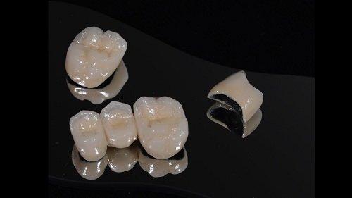 Nguyên nhân và cách khắc phục bọc răng sứ bị thâm lợi 1