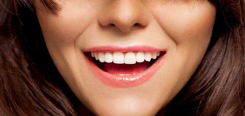 Nguyên nhân và cách khắc phục bọc răng sứ bị thâm lợi 3