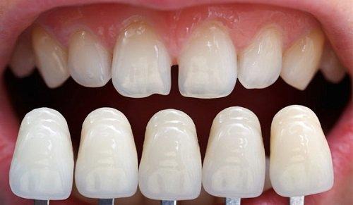 Bọc răng sứ không cần mài răng thực hiện như thế nào? 3