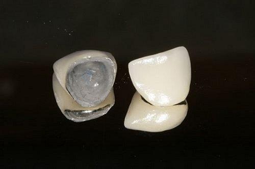 Ưu và nhược điểm bọc răng sứ kim loại thường bạn nên biết 1
