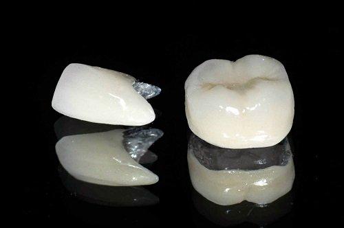 Bọc răng sứ titan có tốt không? Lý giải từ nha khoa 1