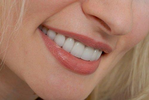 Bọc răng sứ titan có tốt không? Lý giải từ nha khoa 2