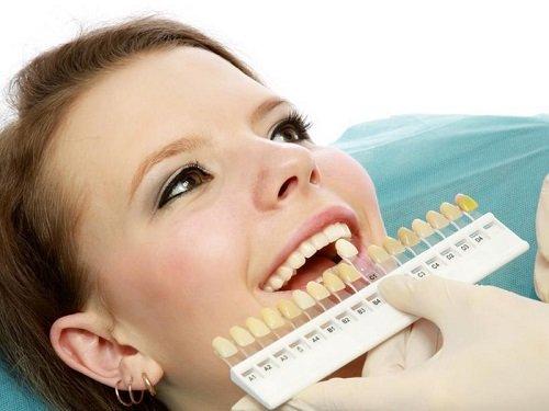 Bọc răng sứ titan có tốt không? Lý giải từ nha khoa 3