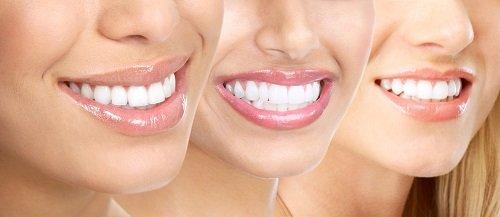 Bọc sứ răng cửa giá bao nhiêu tiền? Có rẻ không 2