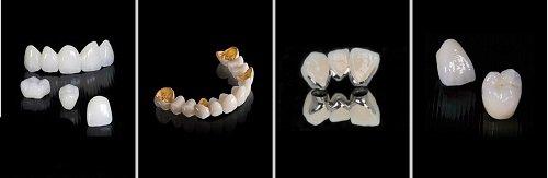 Chụp răng sứ giá bao nhiêu? Có đắt không? 1