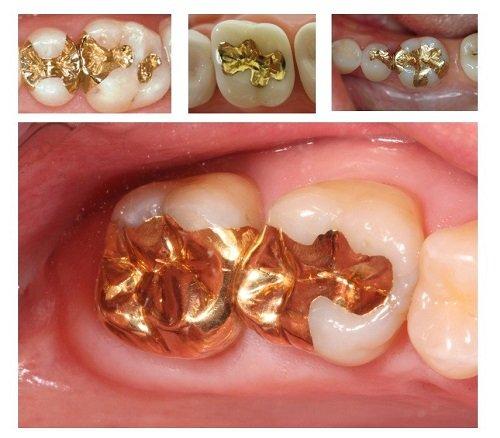 Trám răng có đau không? Lý giải từ nha khoa 1