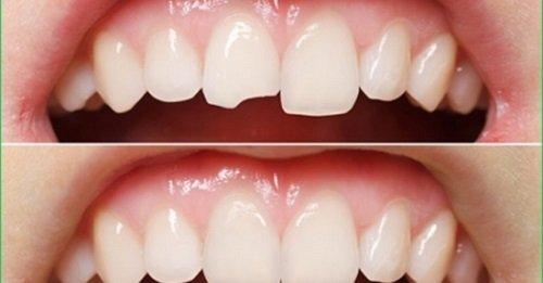 Trám răng có đau không? Lý giải từ nha khoa 2