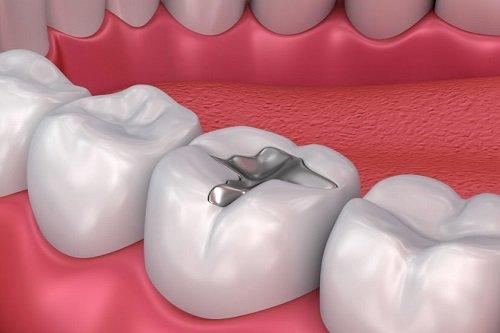 Trám răng có đau không? Lý giải từ nha khoa 3