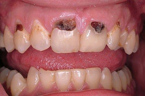 Trám răng cửa bị sâu bao nhiêu tiền? Tìm hiểu tại đây 1