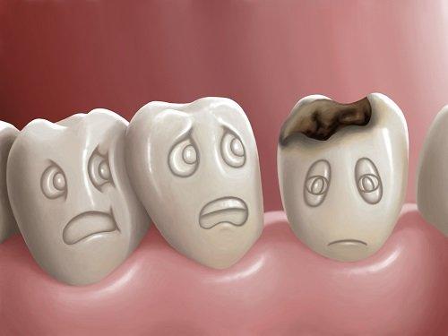 Trám răng cửa bị sâu bao nhiêu tiền? Tìm hiểu tại đây 2