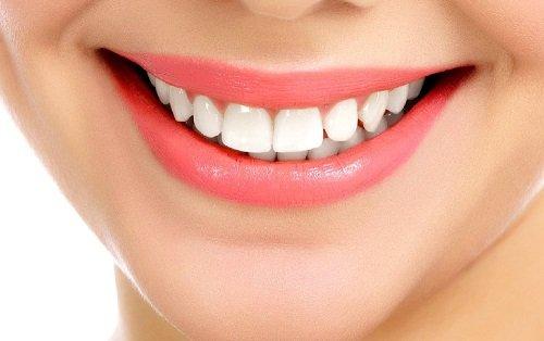 Trám răng cửa bị sâu bao nhiêu tiền? Tìm hiểu tại đây 3