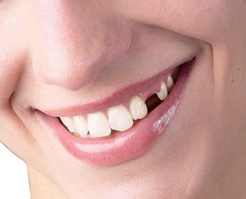 Trồng răng cấm hết bao nhiêu tiền? Bảng giá mới nhất 1