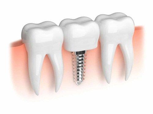 Trồng răng cấm hết bao nhiêu tiền? Bảng giá mới nhất 2