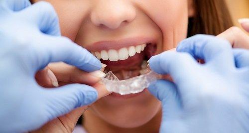 Niềng răng bao lâu thì nên có bầu? Nha khoa tư vấn 1
