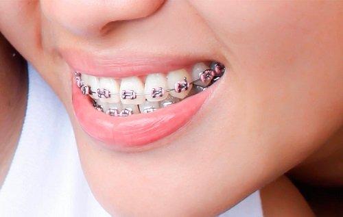 Niềng răng bị hỏng phải khắc phục ra sao? 2