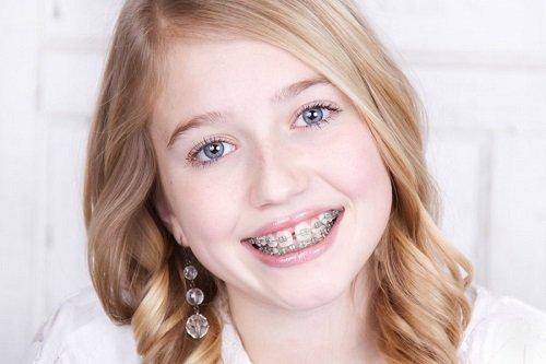 Niềng răng bị hóp má - Nguyên nhân dẫn đến biến chứng niềng răng 1