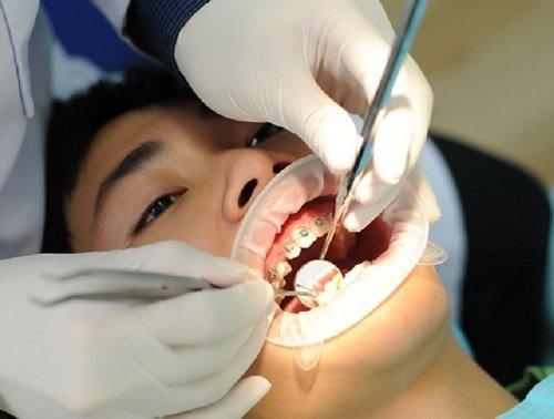 Niềng răng bị hóp má - Nguyên nhân dẫn đến biến chứng niềng răng 2