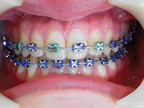 Niềng răng bị lòi chân răng- Cách khắc phục triệt để 1