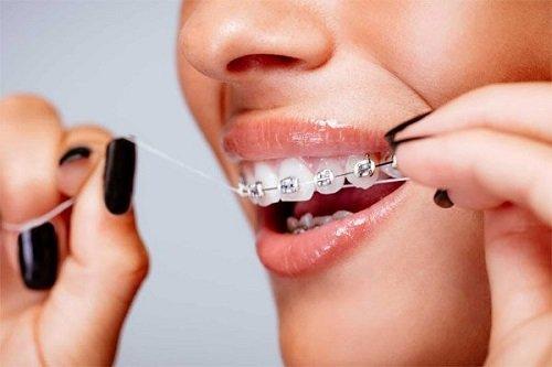 Niềng răng bị lòi chân răng- Cách khắc phục triệt để 3