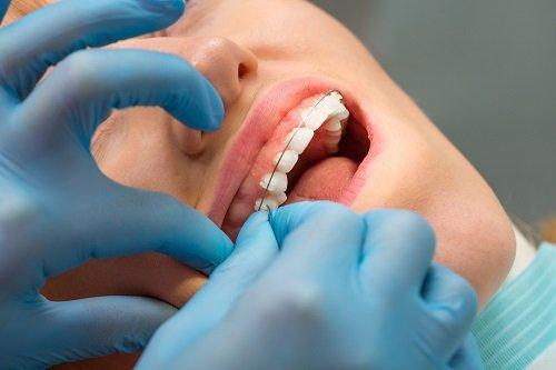 Niềng răng chữa cười hở lợi giải pháp tốt cho bạn 2