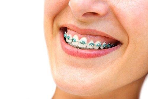 Niềng răng chữa cười hở lợi giải pháp tốt cho bạn 3