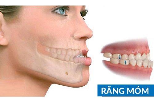 Niềng răng có hết móm không? Nha khoa tư vấn 1