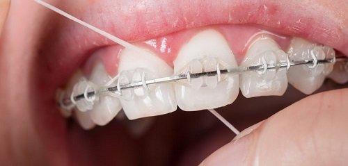 Niềng răng có hết móm không? Nha khoa tư vấn 2