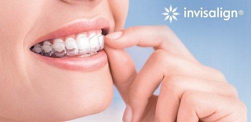 Niềng răng khi mang thai có được không? Tư vấn từ bác sĩ chuyên khoa 2