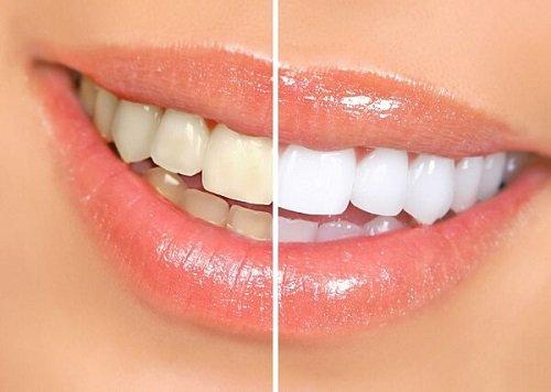 Cách khắc phục tình trạng răng sứ bị xỉn màu 1