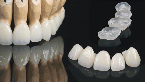Cách khắc phục tình trạng răng sứ bị xỉn màu 2