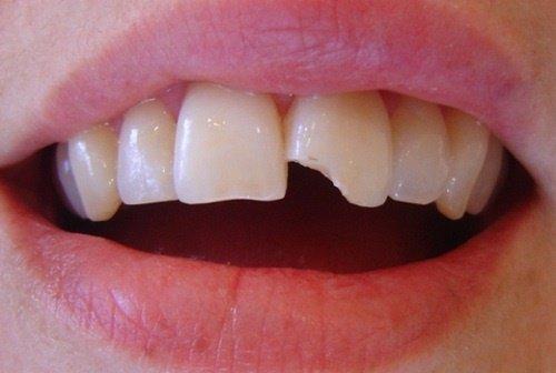 Trám răng cửa bị mẻ khắc phục tính thẩm mỹ cho răng 1