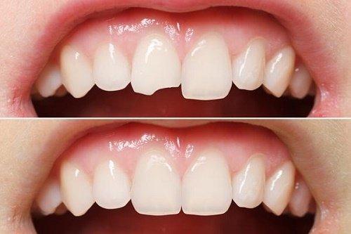 Trám răng cửa bị mẻ khắc phục tính thẩm mỹ cho răng 2