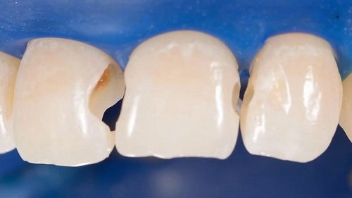 Trám răng cửa bị mẻ khắc phục tính thẩm mỹ cho răng 3