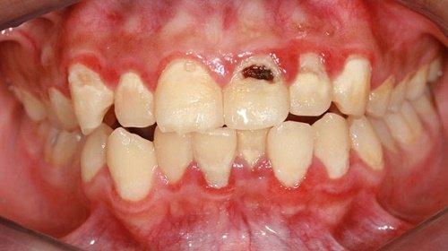 Trám răng cửa bị sâu giúp răng khỏe mạnh 1