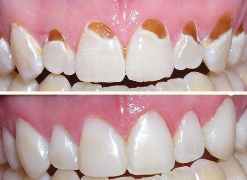 Trám răng cửa bị sâu giúp răng khỏe mạnh 2
