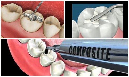 Trám răng cửa bị sâu giúp răng khỏe mạnh 4