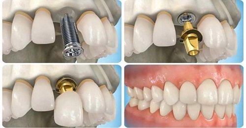 Trồng răng kiêng ăn gì? Thực đơn bạn nên biết 2