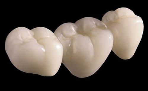 Trồng răng sứ có bền không? Tìm hiểu thông tin 2