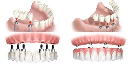 Trồng răng sứ có bền không? Tìm hiểu thông tin 3