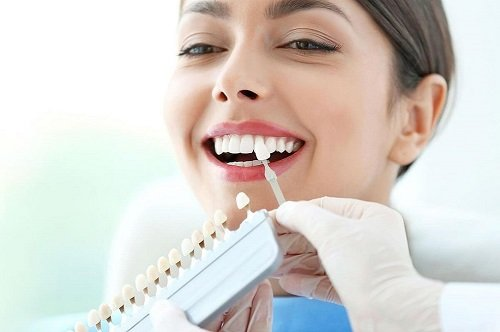 1 bộ răng sứ bao nhiêu tiền? Có rẻ không? 1