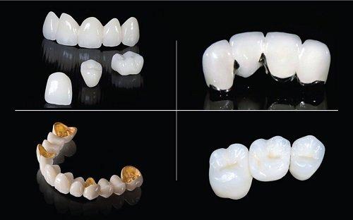 1 bộ răng sứ bao nhiêu tiền? Có rẻ không? 2