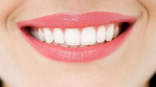 1 bộ răng sứ bao nhiêu tiền? Có rẻ không? 3