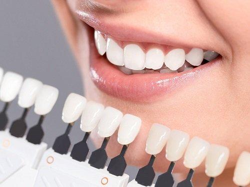 Bọc răng sứ chỉnh hô khắc phục thẩm mỹ cao 1
