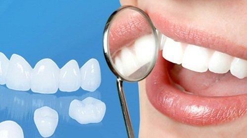 Bọc răng sứ xong có niềng được không? 1