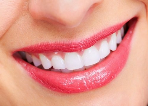 Bọc răng sứ xong có niềng được không? 3